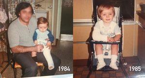 Thierry bébé en plâtre (fractures)